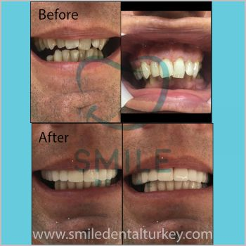 Before after dental crowns turkey