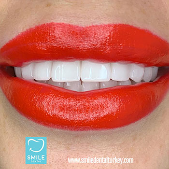 veneers turkey