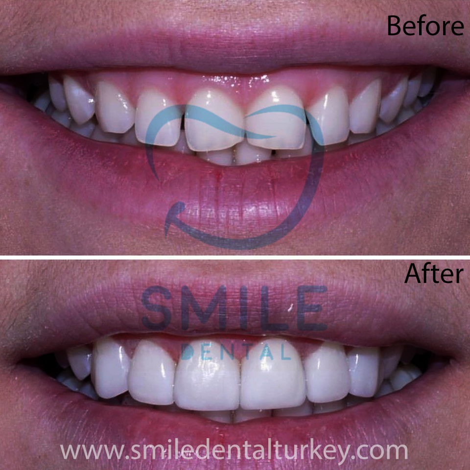 smile makeover before after turkey