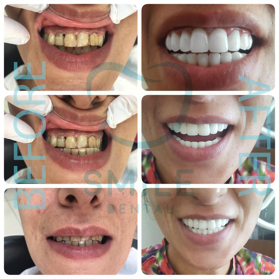 Smile Makeover Before After
