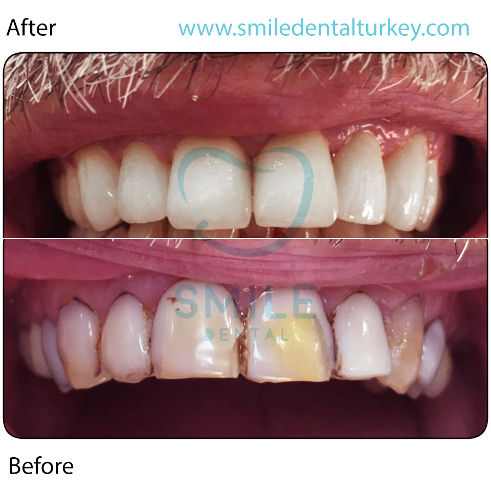 dental crowns turkey review
