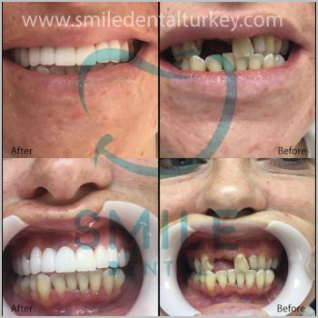 dental implants turkey before after