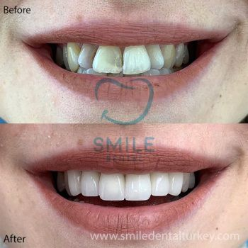 E.max veneers before after