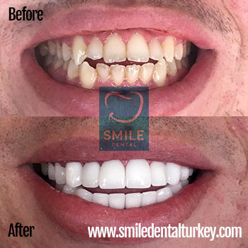 hollywood white veneers smile makeover