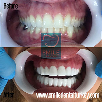 hollywood style zirconium crowns