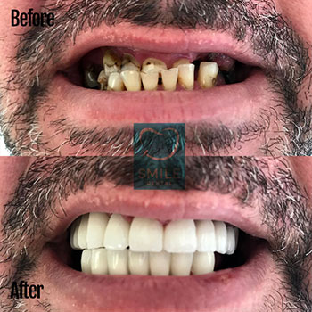 overbite problem fix with dental Implants and metal crowns.