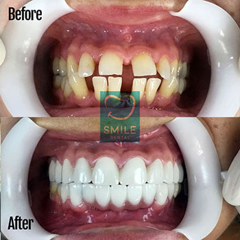 tongue thrust fix with dental Implants and crowns.