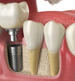 NOT ALL DENTAL IMPLANT BRANDS ARE CREATED THE SAME