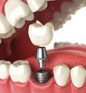 What Is Dental Implant and How Much Full Set Implants Cost In Turkey
