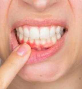 WHAT IS GUM DISEASE? HOW IT OCCURS? HOW IS IT TREATED?