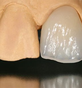 Dental Veneer Types And Colors