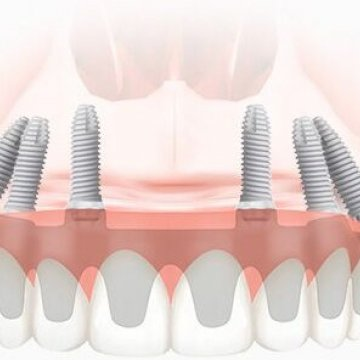 ALL-ON-4 AND ALL-ON-6 DENTAL PROSTHESIS TECHNOLOGIES SIMILARITIES AND DIFFERENCES