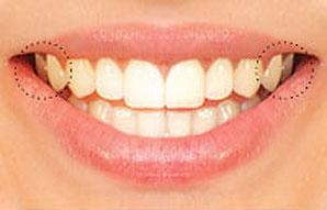 veneers smile line