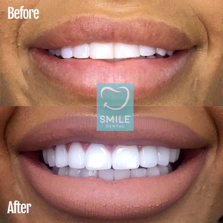 zirconium veneers turkey