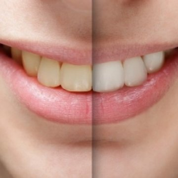 Dental Treatments You Can Receive in Turkey on a Budget
